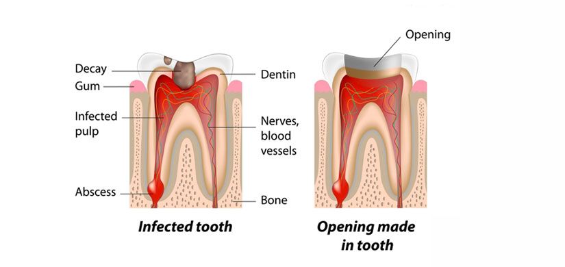 root-canal-slide1