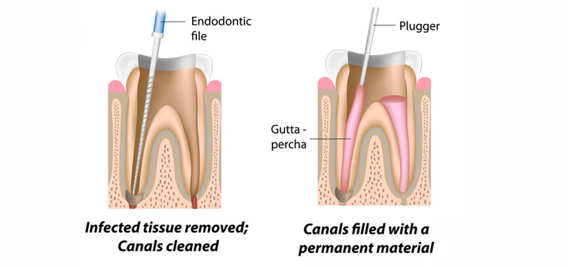 root-canal-slide2