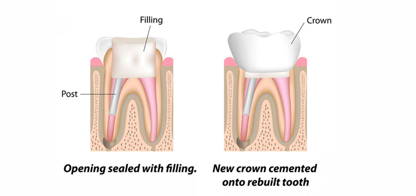 root-canal-slide3