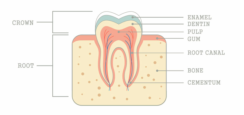 root-canal-slide4